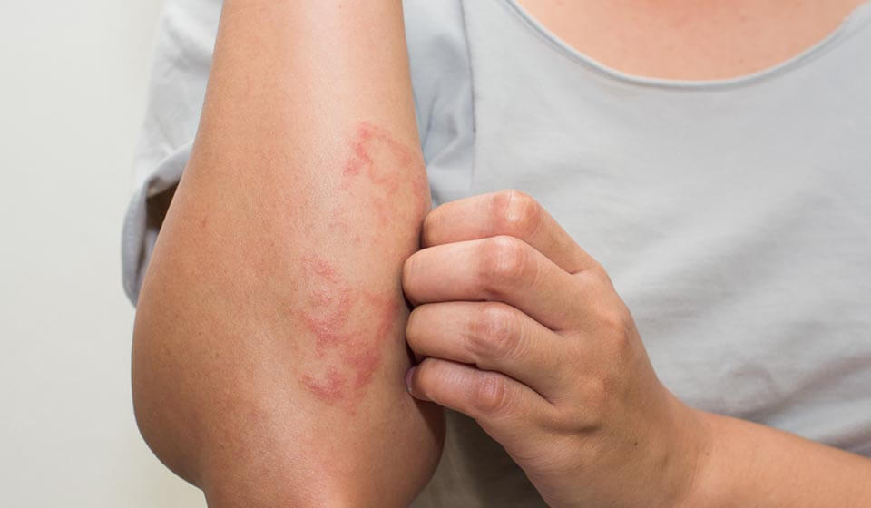 Psicodermatoses, problemas emocionais desencadeados na pele - casule